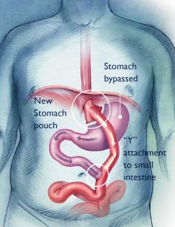 Laparoscopic Gastric Bypass